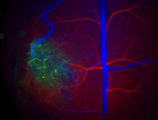 SWIR imaging of a glioma labelled with quantum dots (green). Arteries (red) and veins (blue) labelled with intravasculare contrast agent.